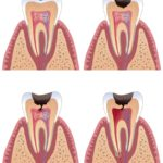 Diagram of tooth with caries stages
