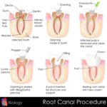 easy to edit vector illustration of root canal procedure of tooth