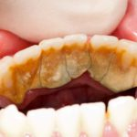Human teeth before and after dental treatment - part of beforeafter series.