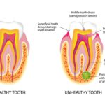 Healthy and unhealthy tooth in cross-section on a white background